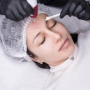 Microneedling Skinpen